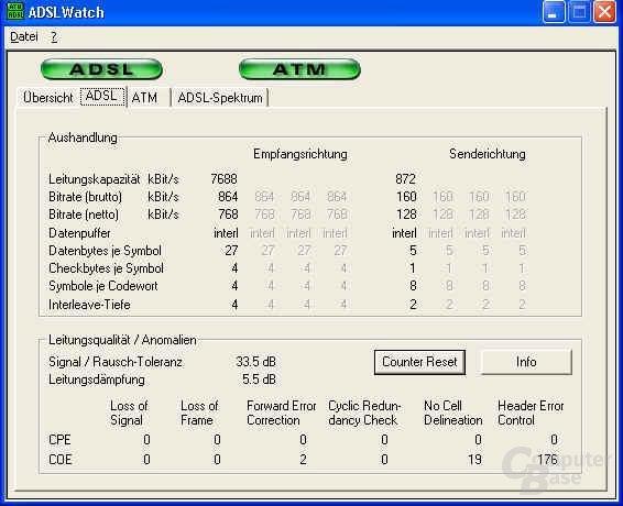 ADSL Watch 1