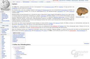 """Inhaltsvergleich (""""Gehirn""""): Wikipedia"""
