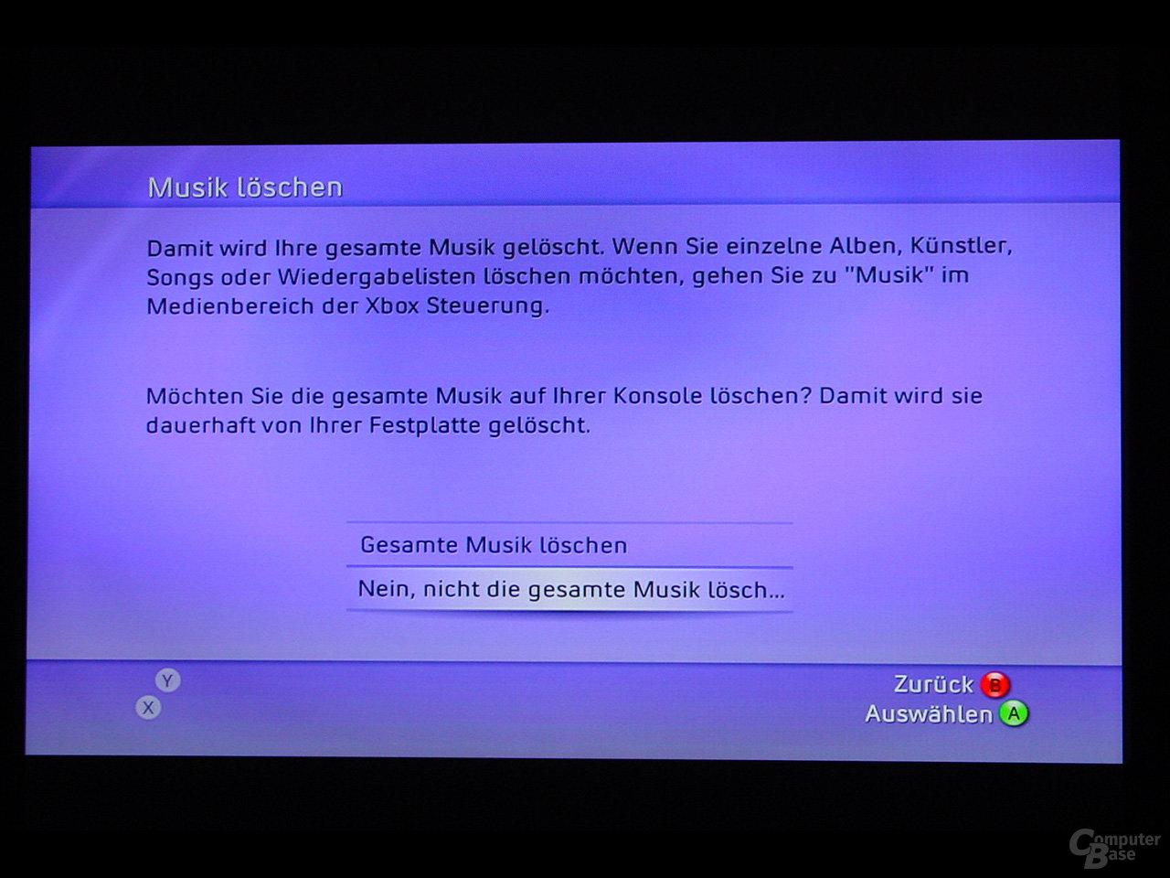 Benutzeroberfläche - Löschen der gespeicherten Musik