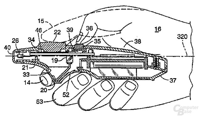 Stein des Anstoßes - das Interlink-Patent