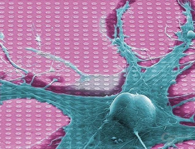 """Der """"Neuro-Chip"""" von Infineon Technologies stellt direkten Kontakt zu einer lebenden Nervenzelle her."""