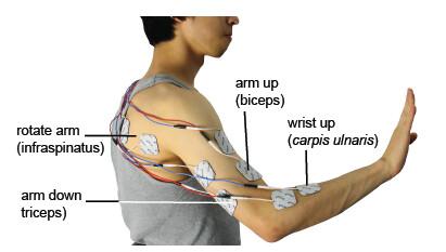 Platzierung der Elektroden zur Muskelstimulation
