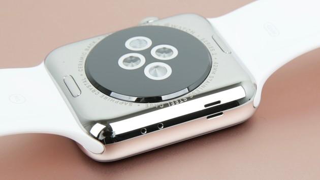 Apple Watch: Zukünftiges Modell soll smarte Armbänder unterstützen - u.a. für