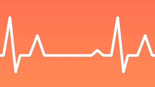 Wearable: Apple Watch soll in Zukunft EKG erstellen können