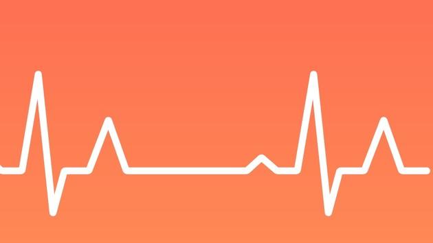 Apple Watch: Herzrhythmusstörungen zuverlässig erkannt