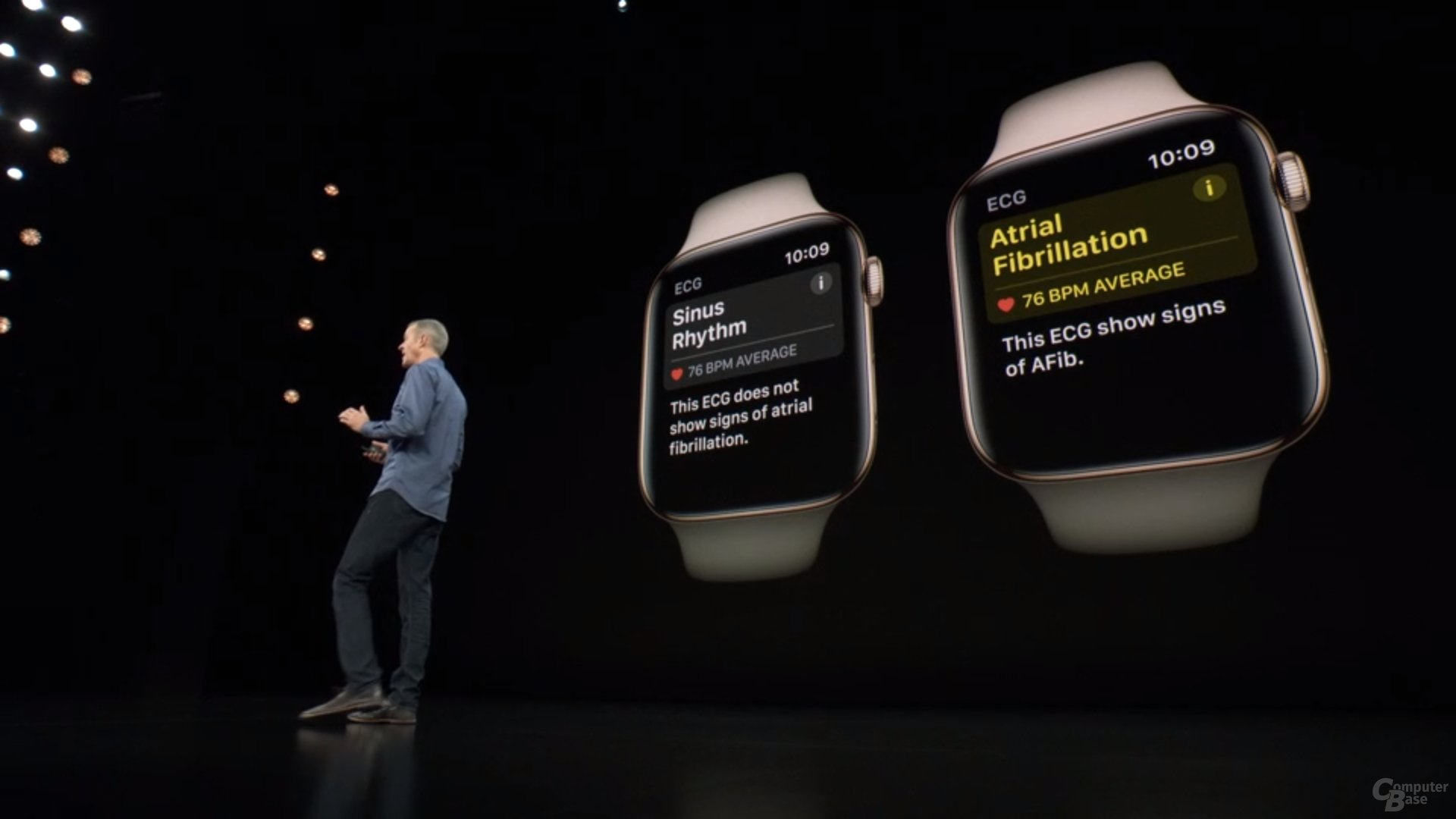 Apple Watch Series 4 – Mit Support für Electrocardiogram